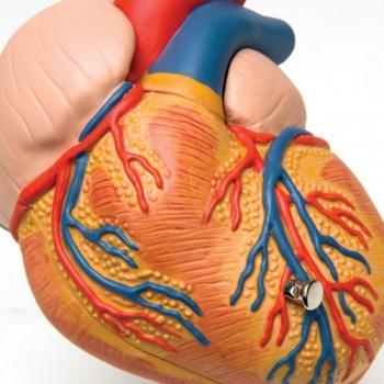 Herzwand Verdickt